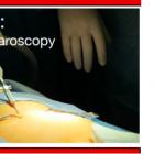 Laparoscopia e retroperitoneo nella chirurgia dell' endometriosi profonda